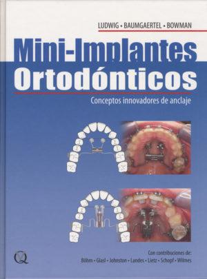 mini_implantes