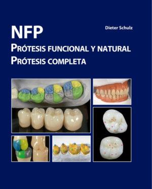 NFP - Prótesis Funcional y Natural